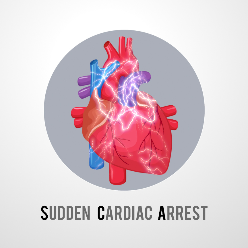 a study on sudden cardiac arrest sca and the importance and purpose of cpr as a first aid The importance of cpr and aeds: an sca survivor's story  time to watch me drop to my knees and fall face first onto the ground  that his heart had stopped and that he'd gone into sudden cardiac arrest (sca.
